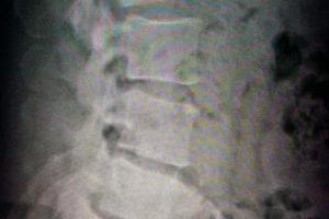 lumbar x-ray