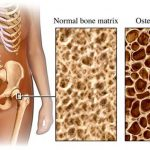 Osteoporosis: A Bone Disease Not Only For The Elderly