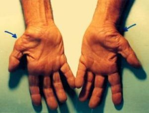 Thumb muscle atrophy from untreated CTS (wikipedia)