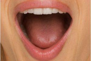 key TMD symptoms